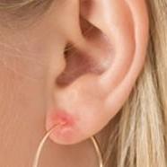 Allergie à une boucle d'oreille
